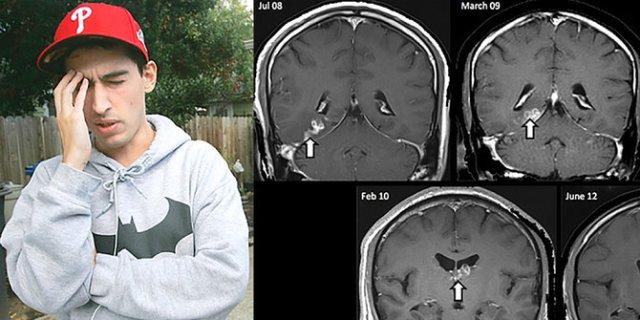Astaghfirullah! Akibat Makan Babi, Mahasiswa AS Ini Otaknya Digerogoti Cacing